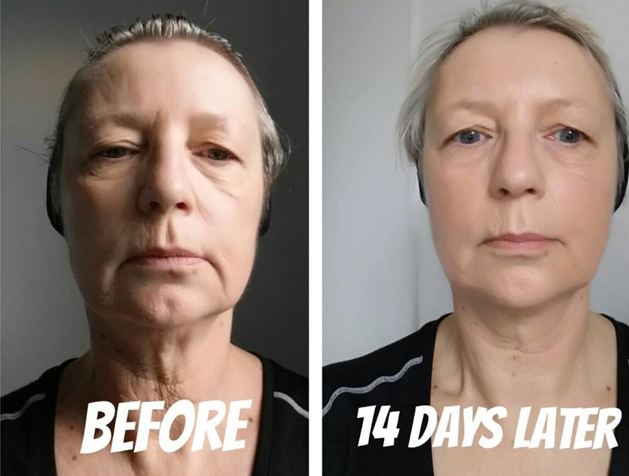 Aileen Milnes SKIN BEFORE AFTER